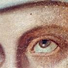 Auge nachher